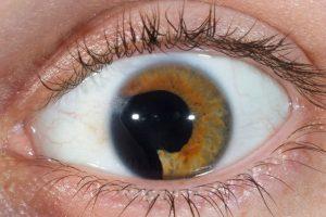 broken_eye